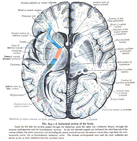 Infarct hersenen