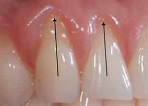 Dents Qui Se Déchaussent Photos : traitement des dents d chauss es r cession gingivale clinique dentaire iberville ~ Medecine-chirurgie-esthetiques.com Avis de Voitures