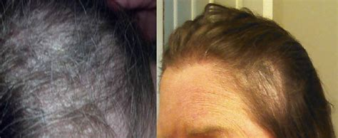 Wen Hair Care Lawsuit See Photos Of Hair Loss Peoplecom