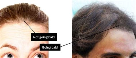 hair loss front of head am i going bald how to know if you 39 re going bald