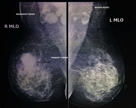 Mammogram Random Reflections Of A Breast Surgeon