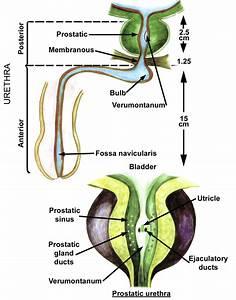 Dr Kupe  Benign Prostatic Hyperplasia