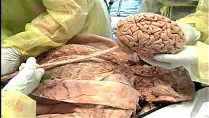 Main Parts Of The Cns  From The Dvd  U0026quot Dissection Of The