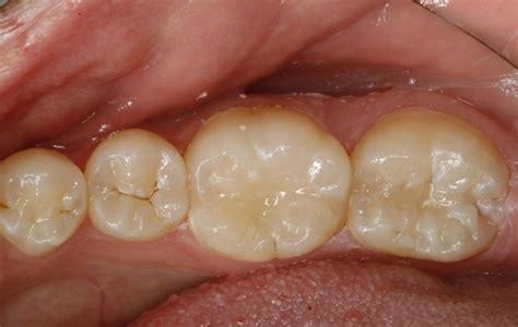 fissures et fractures dentaires comment r 233 agir