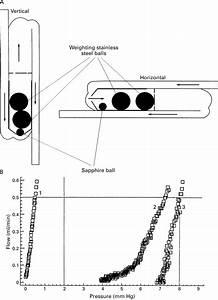 Chhabra Hydrocephalus Shunt  Lessons For Gravitational
