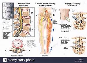 Spinal Surgery L4 L5 And L5 L6 Stock Photo  7712799