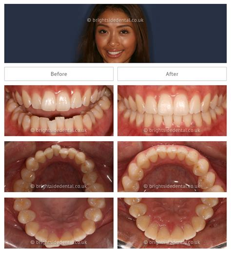 siege auto assix simply smile find a dentist 100 images 61 best
