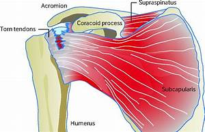 Diagram Of Shoulder Tendons  With Images