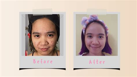 rid  acne hint  wasnt easy style vanity