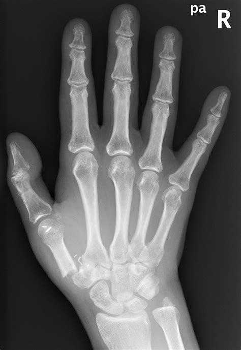 Right Hand Broken Bone Quotes. QuotesGram