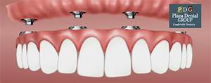 Dental Implants Cost Guide