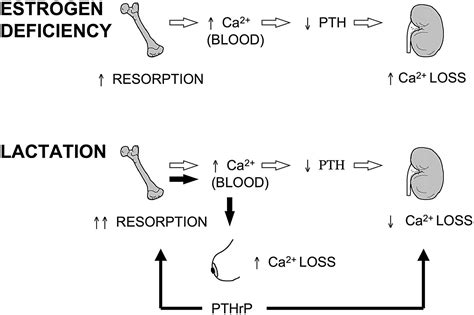 Calcium And Bone Metabolism Disorders During Pregnancy And