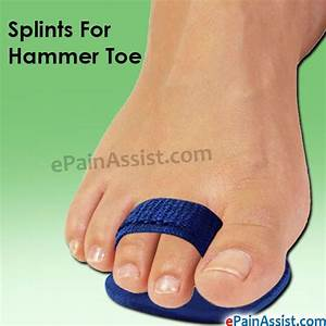 130 Best Hammertoe Information Images On Pinterest
