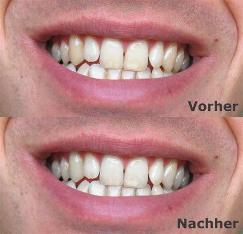 Zähne Bleichen & Aufhellen Mit Perlweiss ™ Schönheits