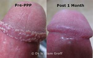 PPP PHOTOS - Pearly Penile Papules PPP