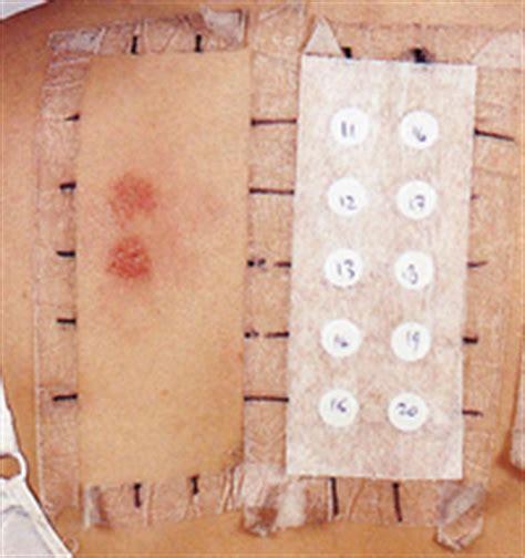test allergologici allergia e test allergologici