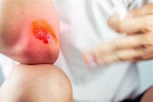 Speed Up The Wound Healing Process With Fir Therapy