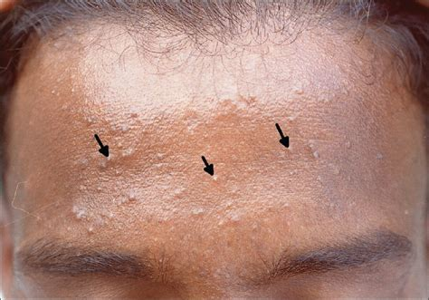 causes of blind pimples - Pimples Under Skin, Ingrown, Cyst, Chin
