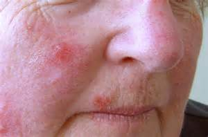 Skin Lesions On Face