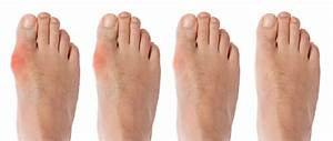 How To Treat Bunions Without Surgery