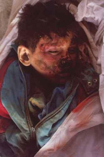arta special edition massacre  drenica children  woman