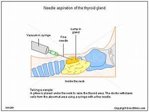 Needle Aspiration Of The Thyroid Gland Illustrations