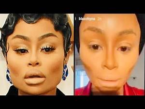 Blac Chyna's NEWEST FACE leaves SCIENTISTS BAFFLED