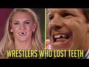 10 WWE Wrestlers Who Had Their TEETH KNOCKED OUT!