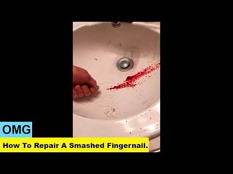 OMG. How To Repair A Smashed Fingernail.